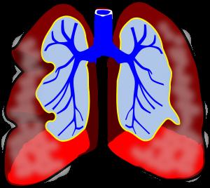 Nauka angielskiego online - Angielski Słówka - Blog o języku angielskim - Bronchitis